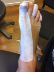 front photo of foot strapping for oxfamwalk