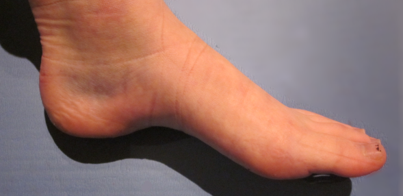 Example of an Ankle Sprain