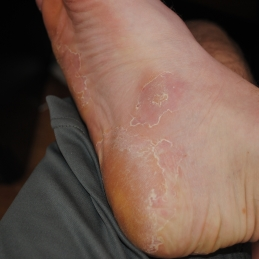 bad foot tinea