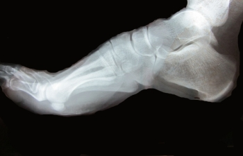 How foot stress fractures occur